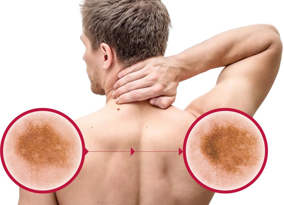 Centrum kožní prevence - muž